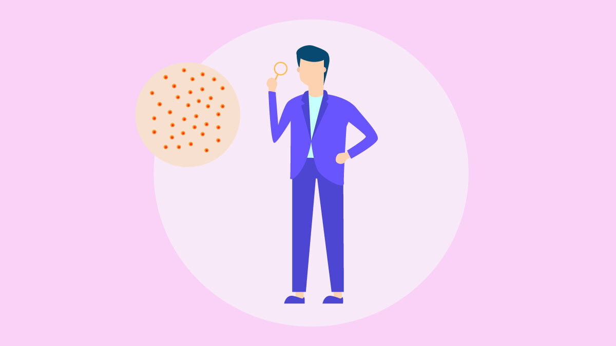 Illustration of a man looking through a magnifying glass into small acne icons