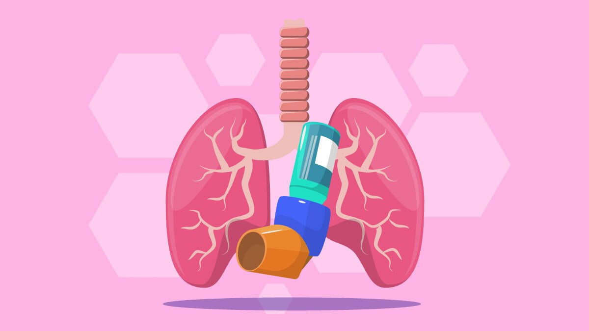 Illustration of an Asthmatic Lungs with Nebulizer on the center