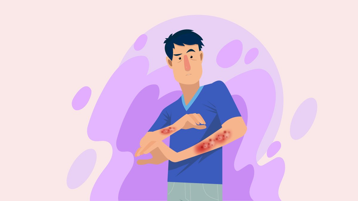 Illustration of a Person with Eczema on His Arms