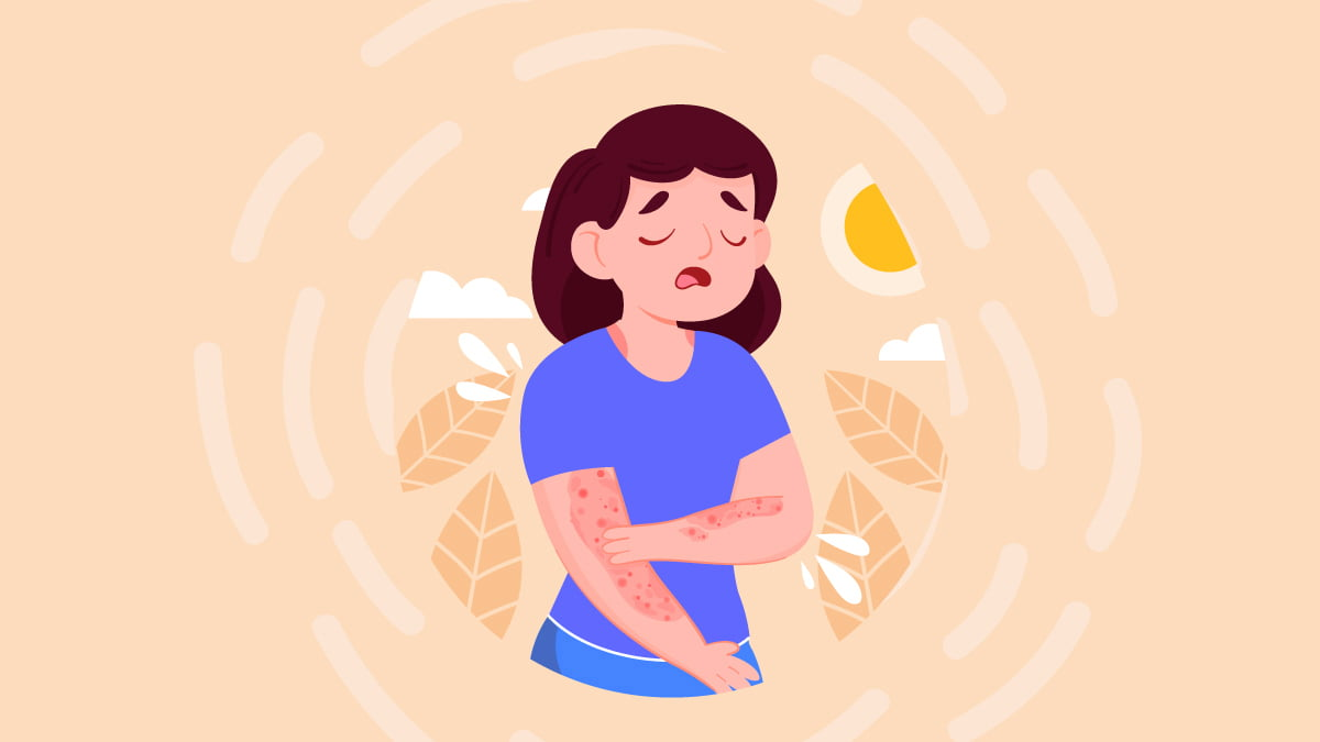 Illustration of a Woman With Psoriasis on Her Skin