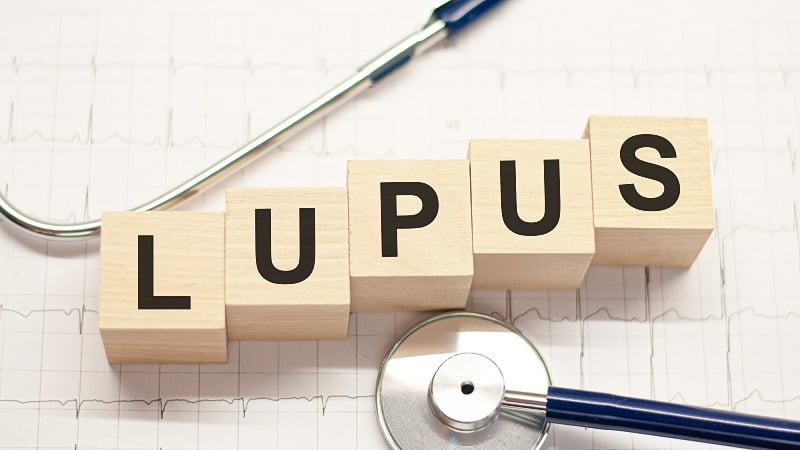 word Lupus on wooden blocks and a stethoscope with EKG test results as background