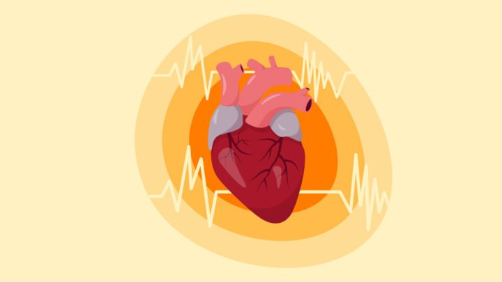 Illustration of Heart with AFib