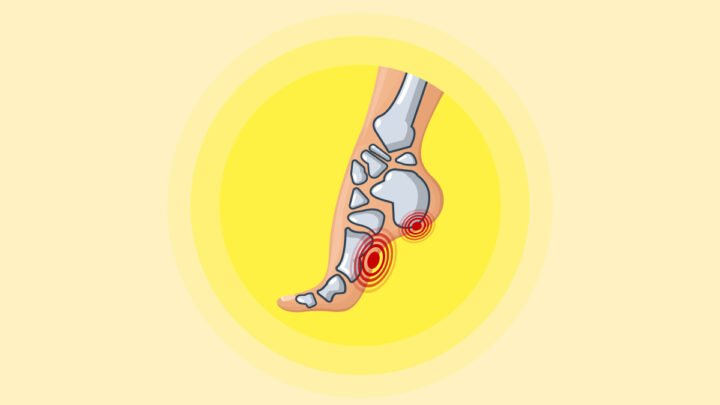 Illustration of Plantar Fascitis in a Yellow Background